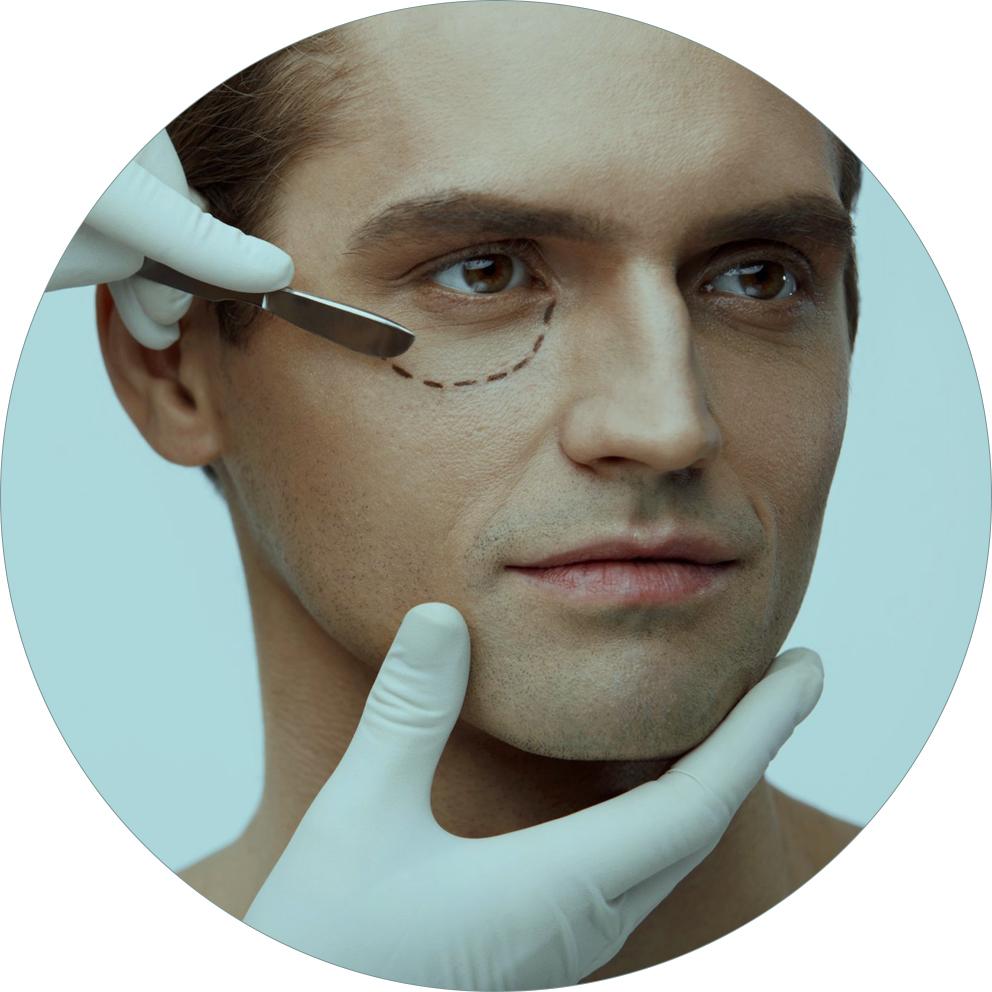 cirurgia plástica de palpebra ou blefaroplastia