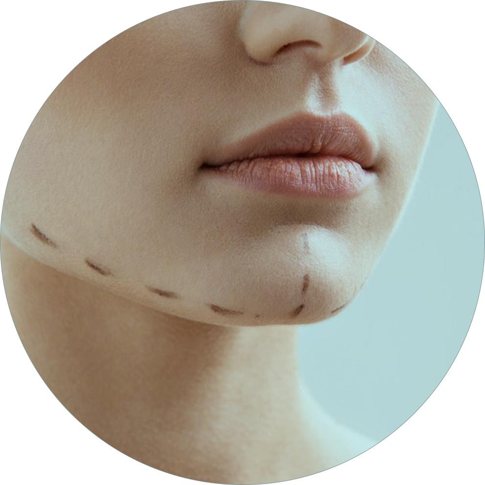 cirurgia de genioplastia ou mentoplastia