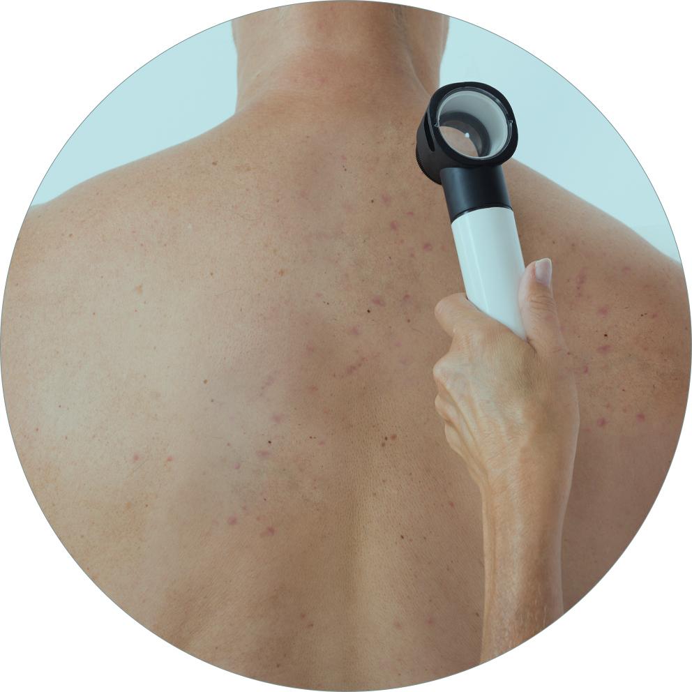 remoção de manchas na pele